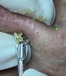 blackhead extracting