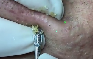 blackhead extracting